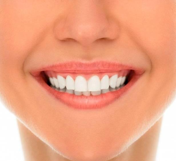 سفید-کردن-دندان