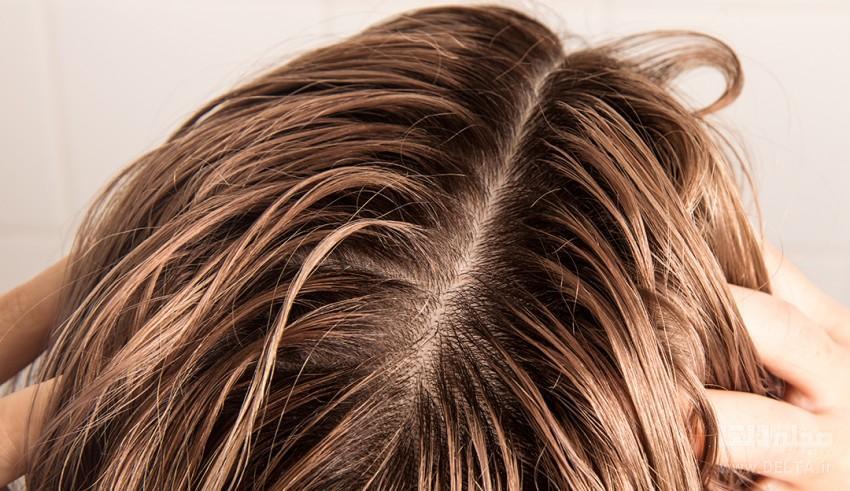 علت چربی موی سر چیست؟ + روش های برطرف کردن و کاهش آن