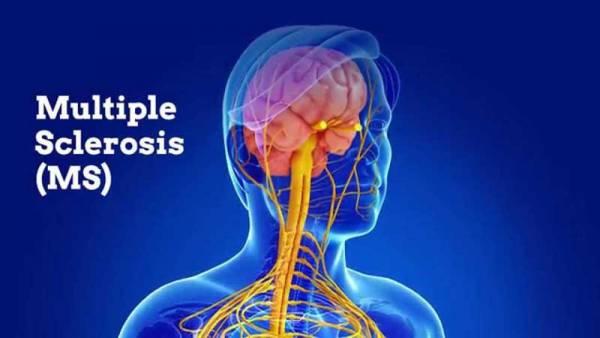 بیماری-ام-اس-چیست