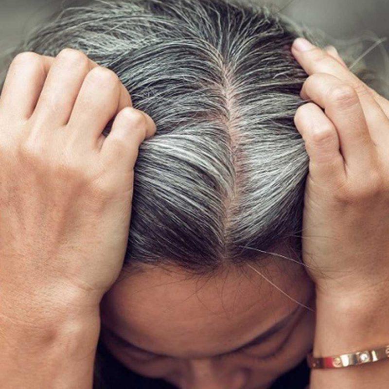 ۷ مهمترین علت سفید شدن مو و راه درمان آن که همه باید بدانند