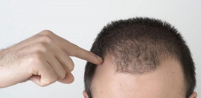 دلایل شایع ریزش مو در زنان و نحوه تشخیص و درمان چیست؟