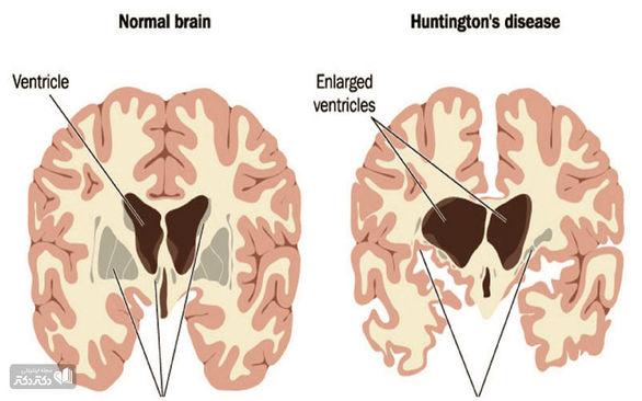 بیماری هانتینگتون چیست و چه نشانهها و علائمی دارد؟