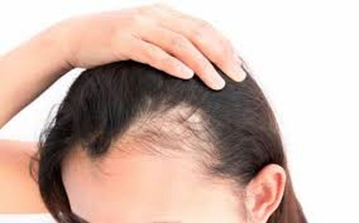 دلایل پزشکی که می تواند منجر به ریزش مو شود