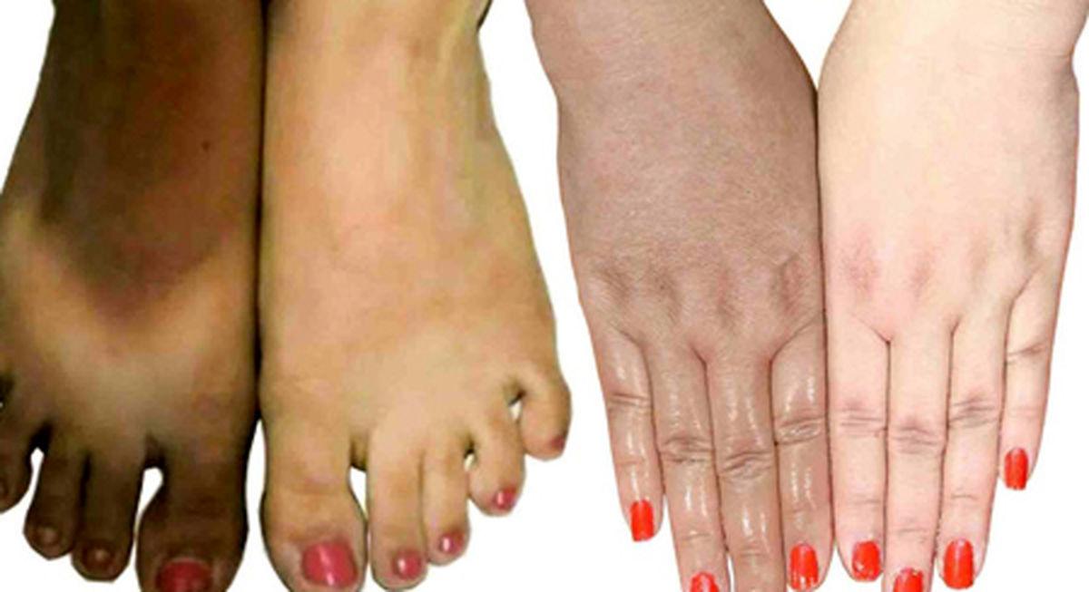 با این روش های آسان پوست دست تان را روشن کنید