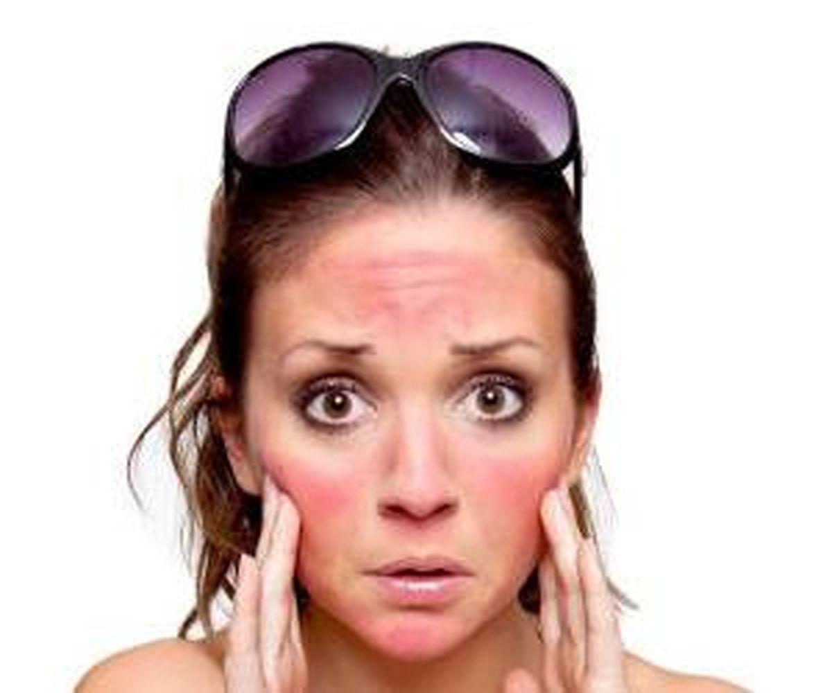 راهکار ساده برای درمان آفتاب سوختگی و تیرگی پوست