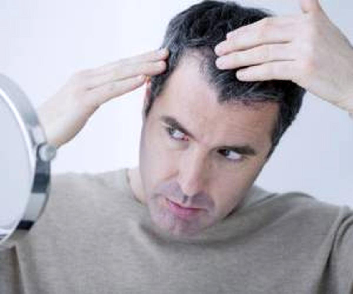 با این ۸ روش ریزش موهای شقیقه را برای همیشه سیاه نگه دارید