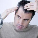 8 راهکار بی نظیر برای درمان ریزش مو شقیقه