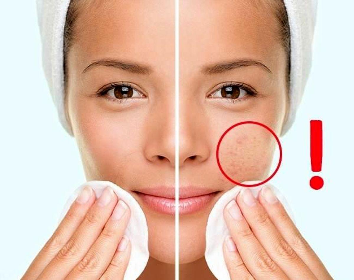 با رعایت این چند نکته سلامتی پوست صورتتان را تضمبن می کنید