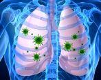 تاثیر مرگبار داروی پوکی استخوان در مقابله با ذات الریه