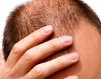 آیا ریزش مو خطرناک است؟