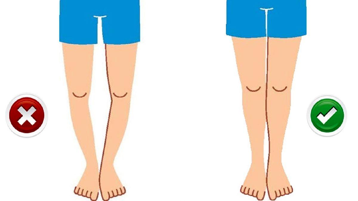 با این روش پاهای پرانتزی را درمان کنید
