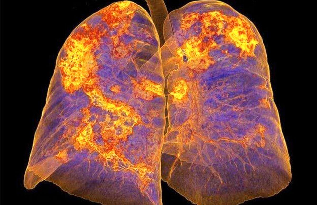 دلایل حمله شدید کرونا به ریهها چیست؟