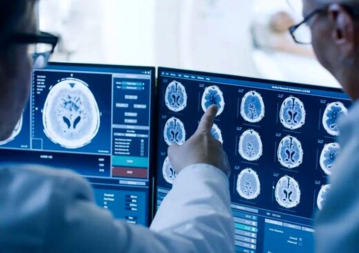 ویروس کرونا بر سیستم عصبی تاثیر دارد ؟