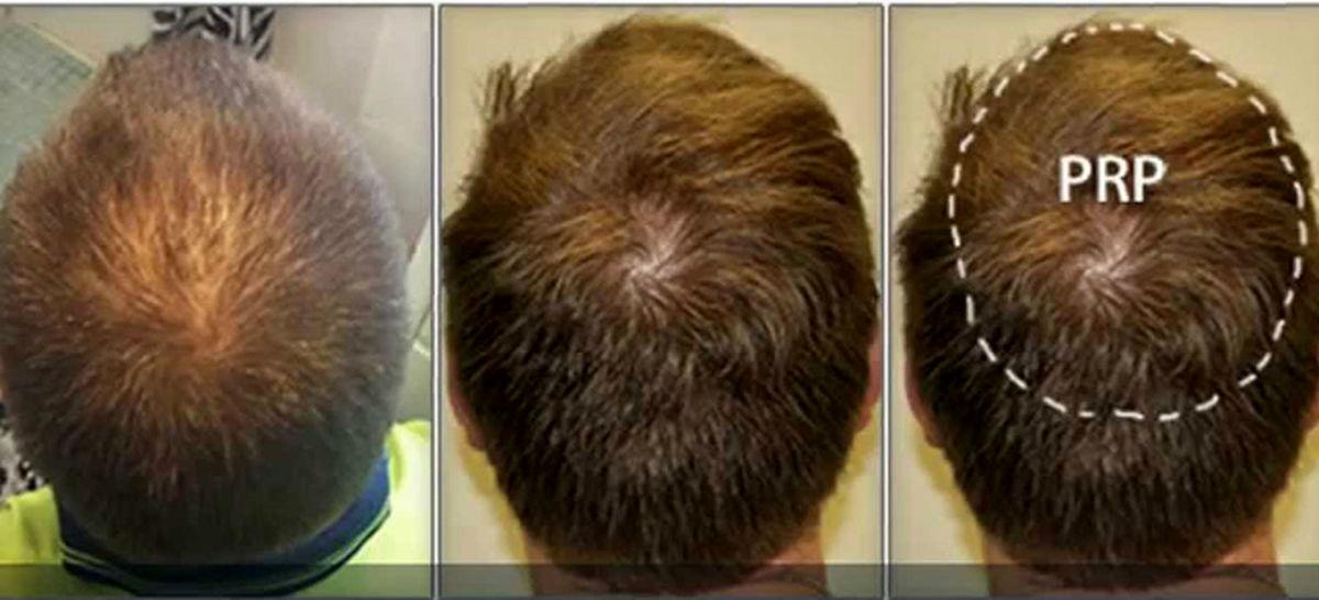 با این روش موهای از دست رفته تان را ترمیم کنید