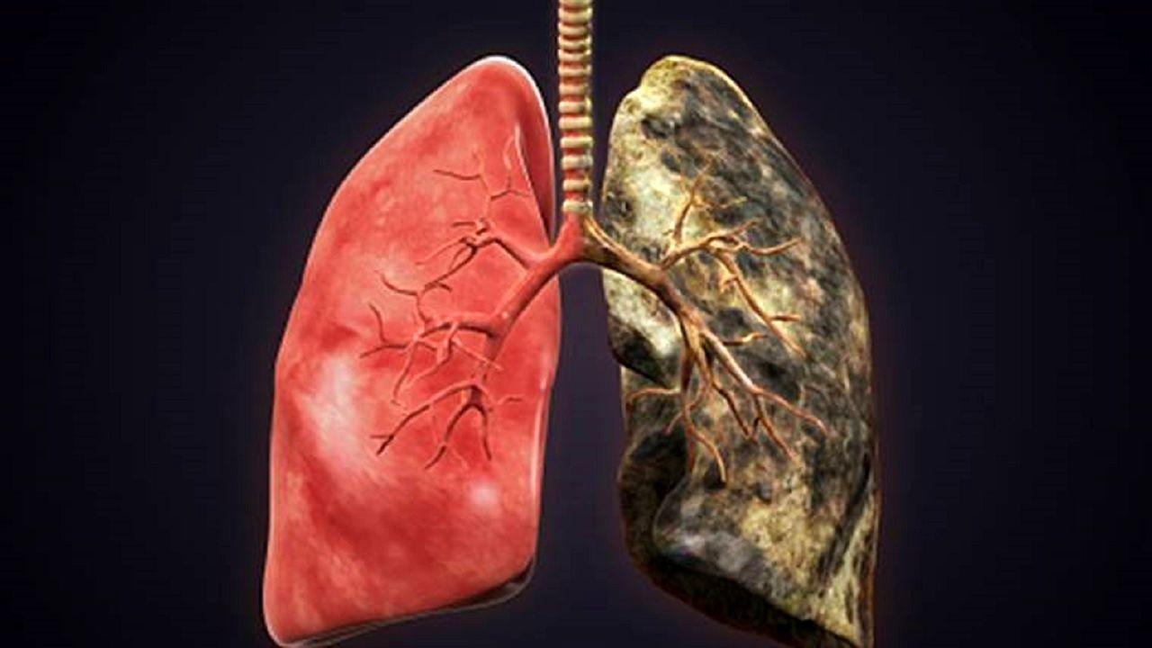 مرگبارترین سرطان جهان چه علائمی دارند؟