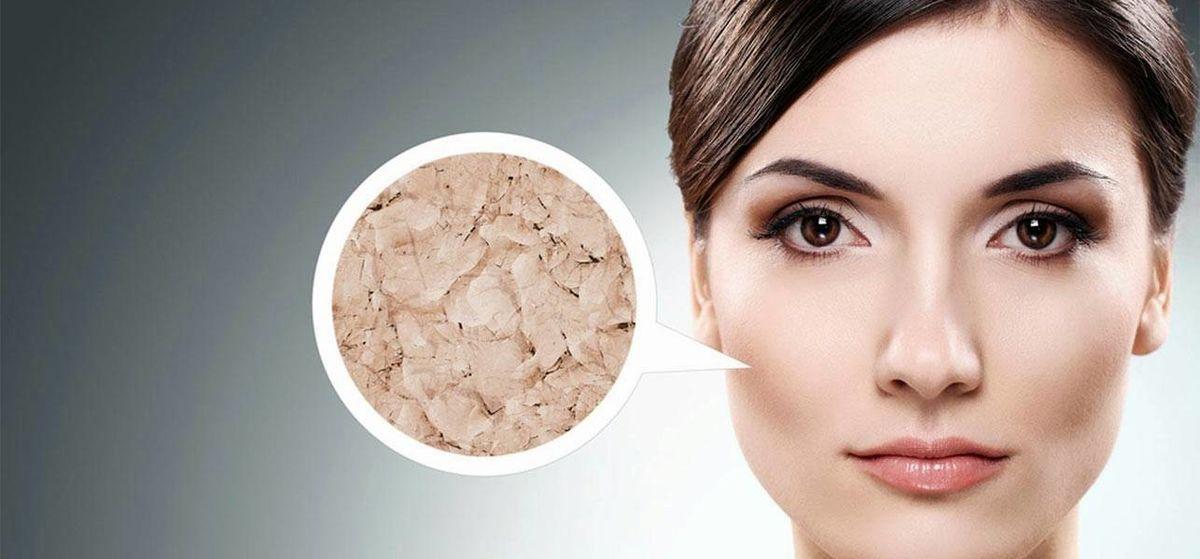بیماری پوستی ایکتیوز چیست؟ + علائم بیماری