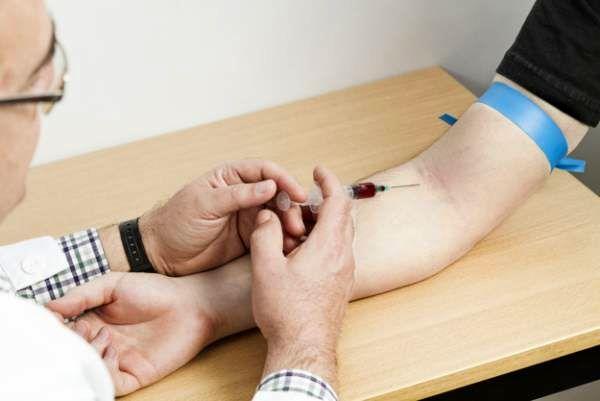 عفونت حاد hiv