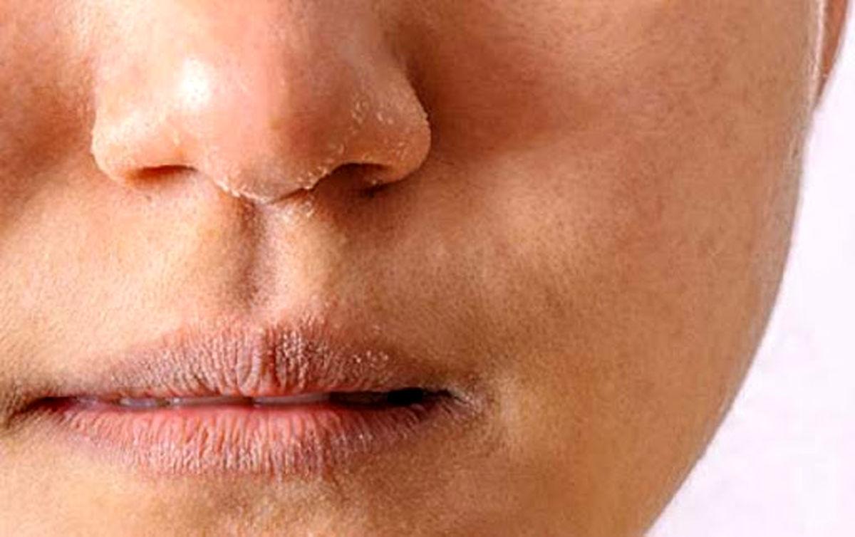 برای جلوگیری از خشکی پوست از این کرم ها حتما استفاده کنید