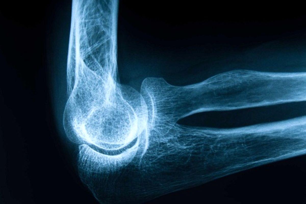 عوامل مؤثر در بروز پوکی استخوان کداماند؟