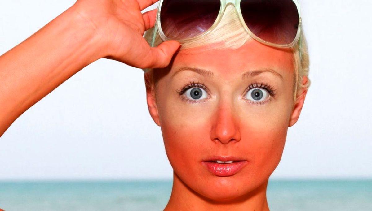 ۱۱ روش خانگی و فوق العاده برای درمان آفتاب سوختگی