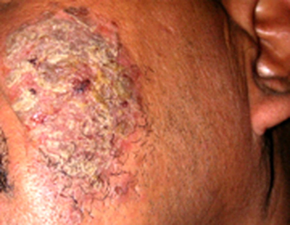 همه چیز درباره بیماری پمفیگوس با تاول پوستی