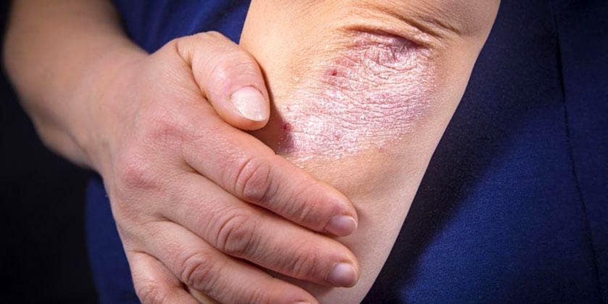 آشنایی با داء الصدف شایع ترین بیماری پوستی