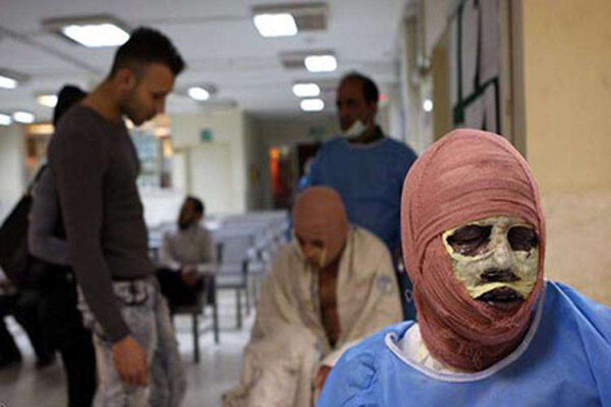 آمار مصدومان چهارشنبه سوری