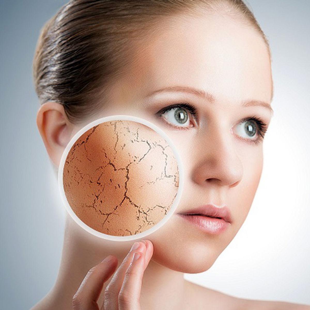 راهکار ها و روش های موثر برای مقابله با خشکی پوست