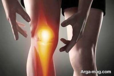 آرتروز چیست؟ + توصیه های پزشکی و خانگی