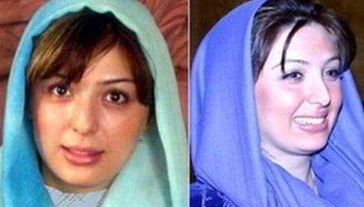چهره نیوشا ضیغمی قبل و بعد از عمل زیبایی   بیوگرافی نیوشا ضیغمی
