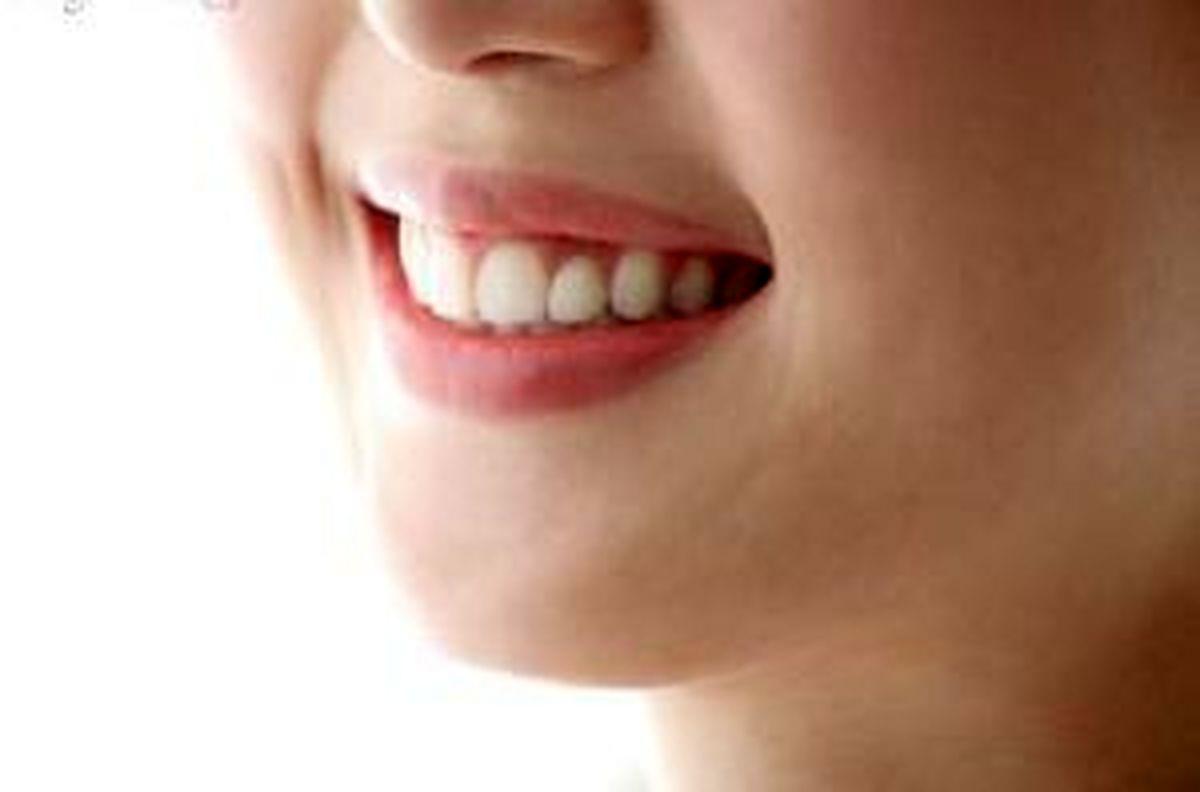 عاملی که باعث زردی دندانهایمان می شود چیست؟