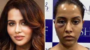 خانم بازیگر پس از عمل، صورتش منفجر شد! + عکس