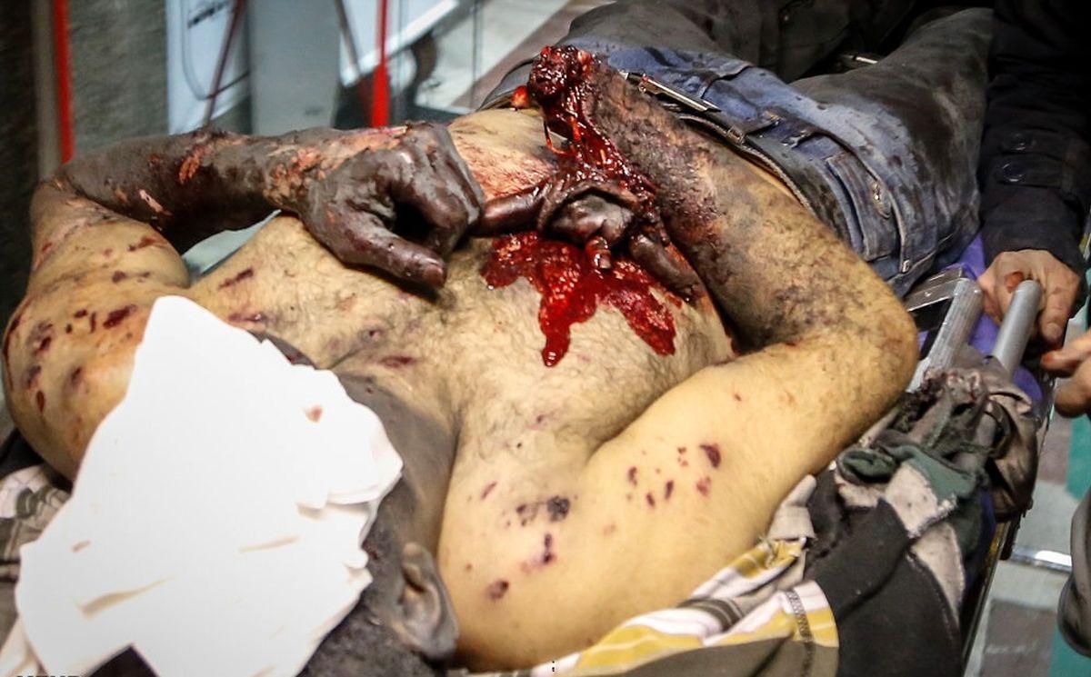 آمار دقیق و لحظه به لحظه از مصدومین چهارشنبه سوری+تصاویر(+۱۸)