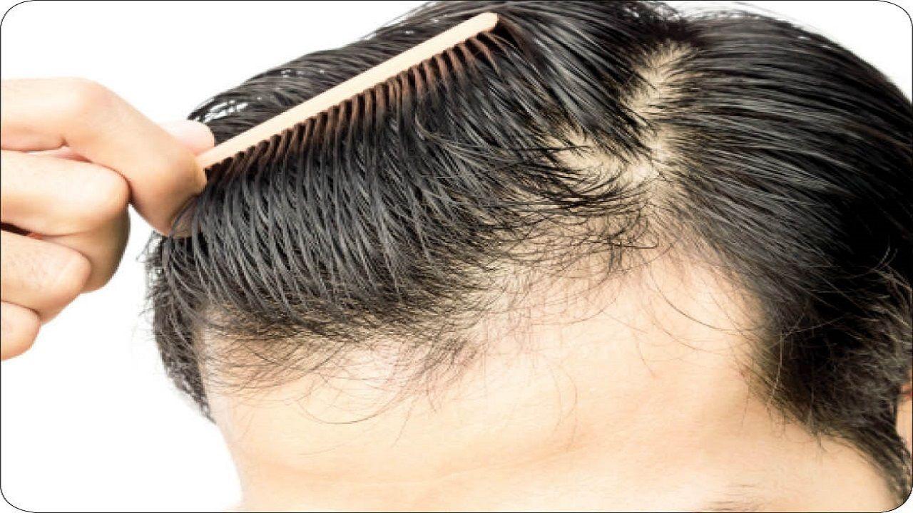 تزریق این سلول جذاب موهای فر را صاف می کند!