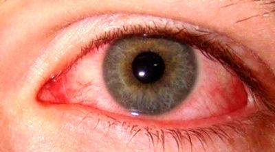 محققان: عارضه چشم صورتی نشانه ویروس کروناست