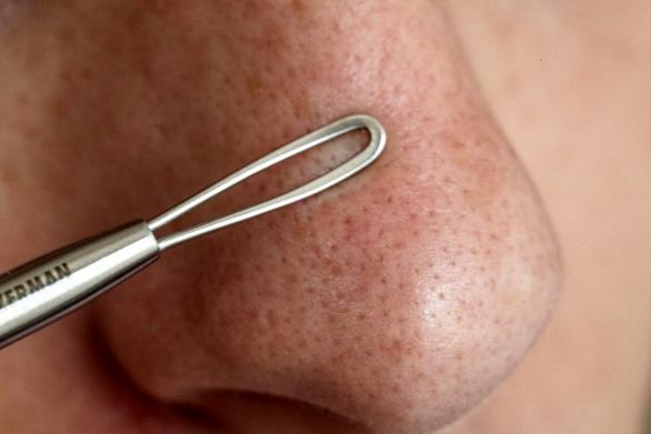چگونه مانع گرفتگی منافذ پوست بینی شویم؟