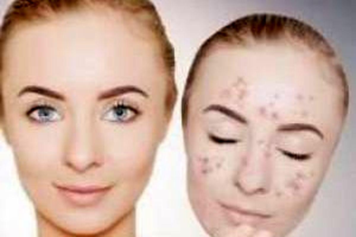 لک های صورتتان را با این ماسک جادویی درمان کنید