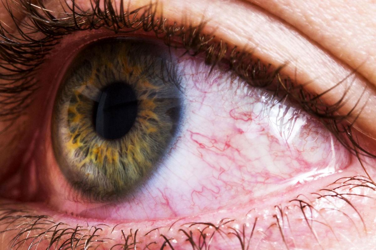 دلیل قرمزی چشم+درمان