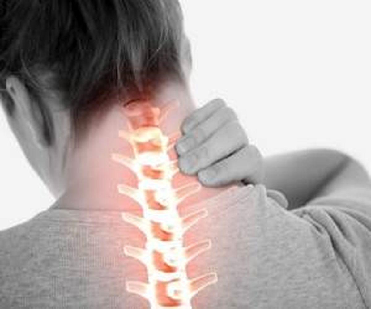 این نوع از گردن دردها را چگونه برطرف کنیم؟