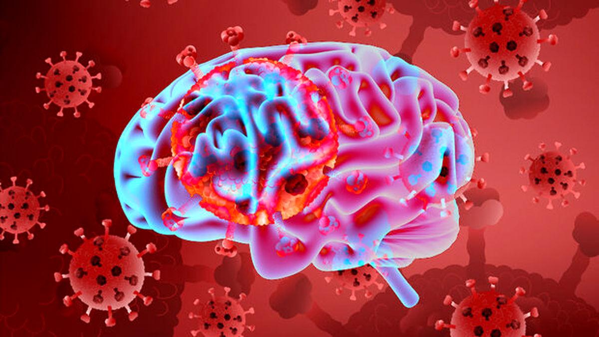 کرونا با نشانه سکته مغزی ظاهر می شود ؟