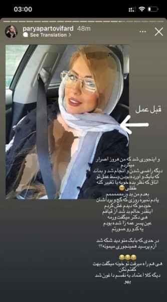 همسر دوم بابک جهانبخش قبل از عمل زیبایی + عکس