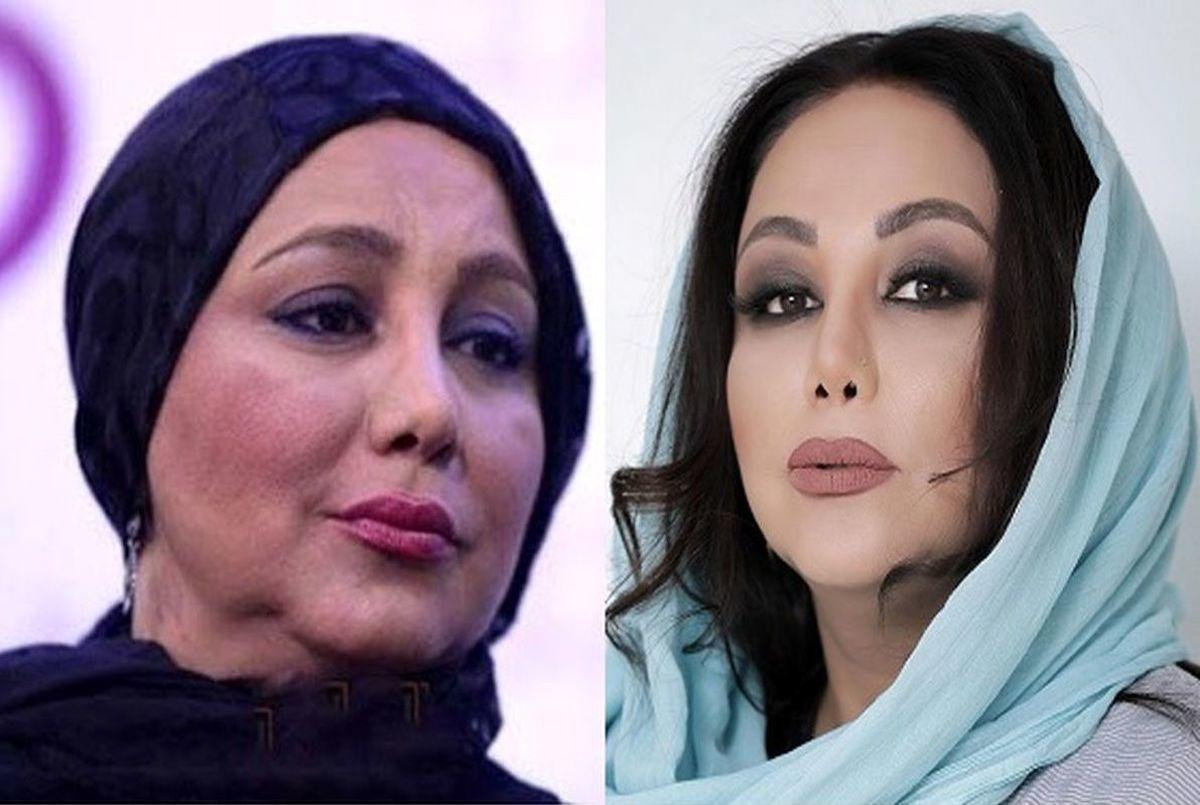 چهره بهنوش بختیاری قبل و بعد از عمل زیبایی | بیوگرافی بهنوش بختیاری