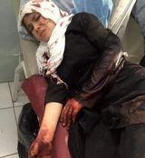ماجرای حمله تروریستی و قتل 82 نفر در افغانستان + عکس