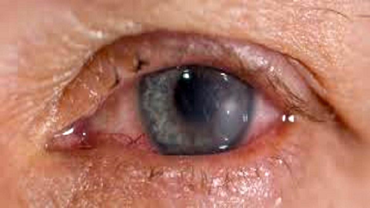 این عفونت در بدن، چشمانتان را از بین می برد