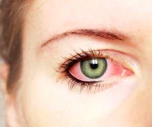 این ۱۱ علت چشم  درد را حتما جدیدی بگیرید