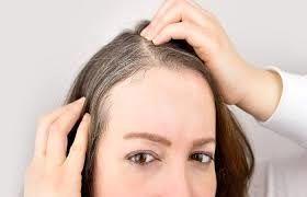 دلیل سفید شدن موی ناگهانی جوانان از چیست ؟