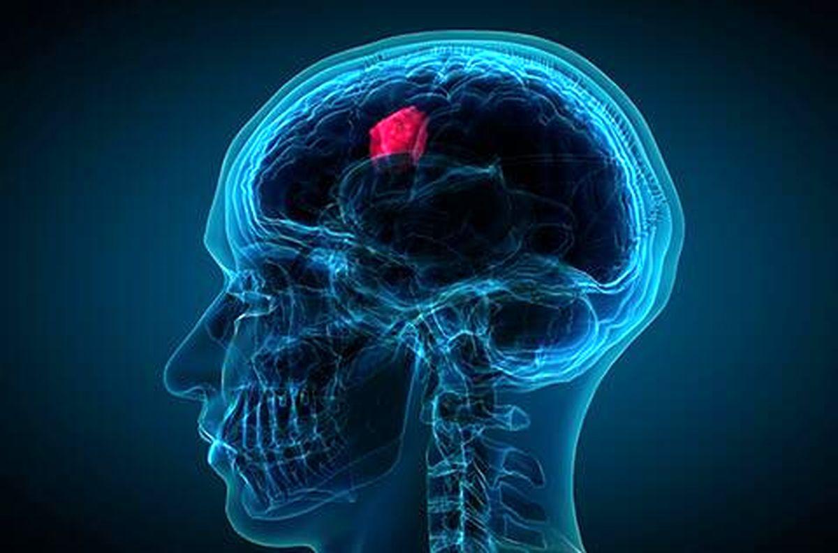 درمان تومور مغزی در کشور با اختراع فناوری نوین