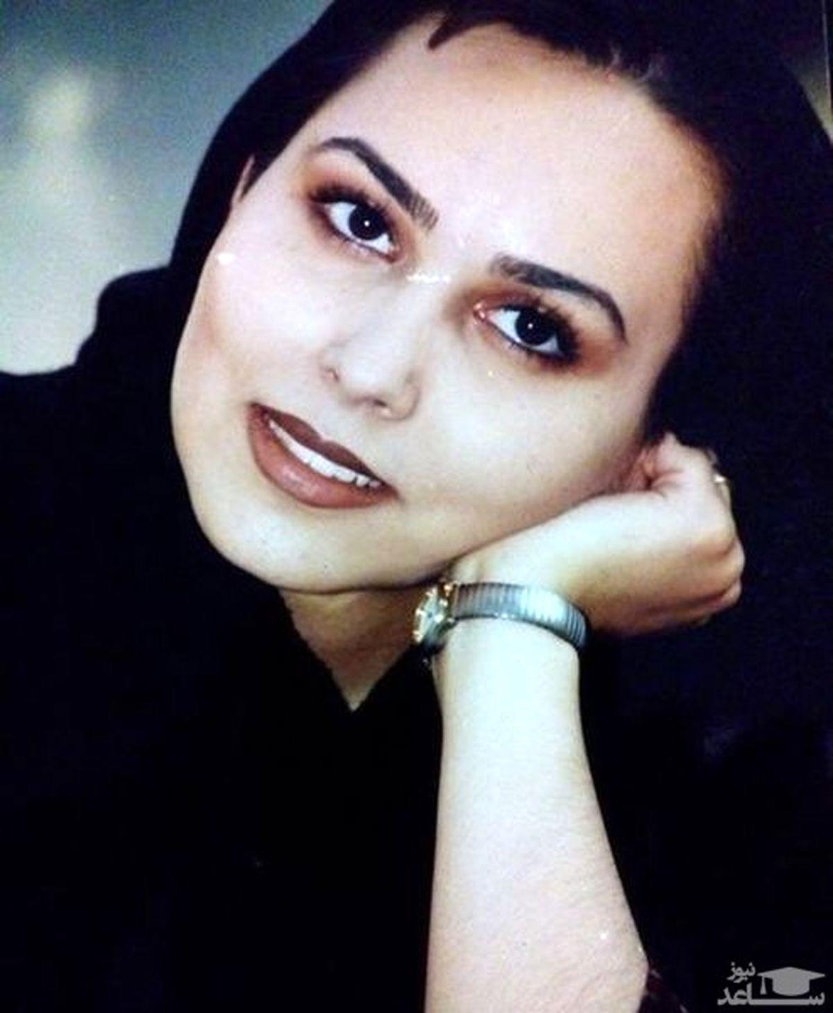 عکس لورفته از پرستو صالحی قبل از عمل زیبایی + عکس