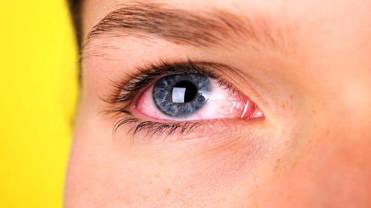 ویروس کرونا تا چه مدت در چشم باقی میماند + جزئیات