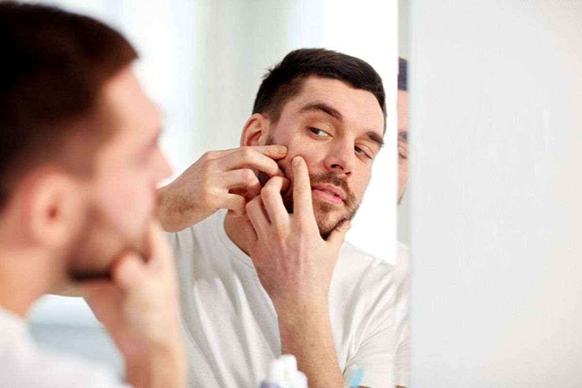 راهکارهای قطعی برای درمان جوش های سر سیاه